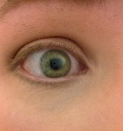 gold eye 1