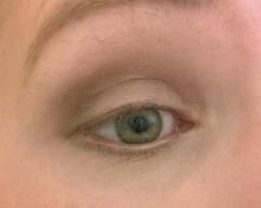 gold eye 2